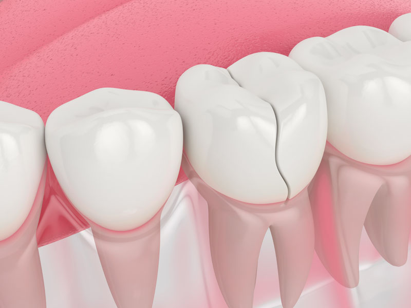 cracked teeth treatment